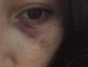 Antalya'da kendisini darbeden eski erkek arkadaşı tarafından tehdit edildiğini öne süren genç kız yardım istedi