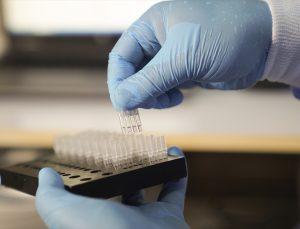 Mikrobiyologlardan aşı sonrası antikor testlerinde güvenilirlik uyarısı