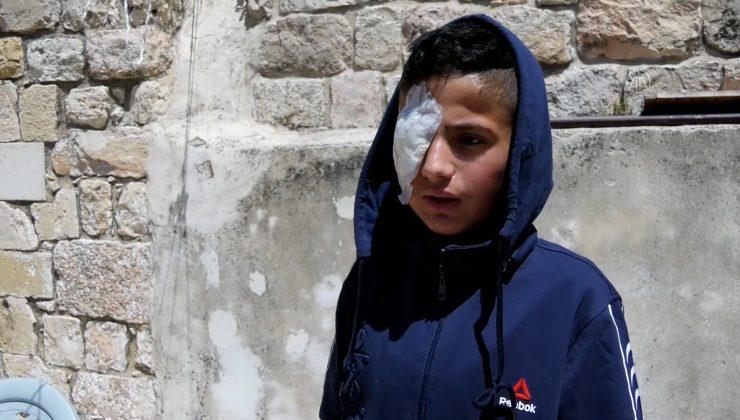İsrail askerlerinin saldırısında gözünü kaybeden 13 yaşındaki Filistinli çocuğun hayalleri de yarım kaldı
