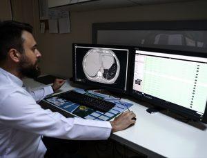 Bilgisayarlı tomografide Kovid-19'u 50 saniyede tespit edebilen yapay zeka yazılımı geliştirildi