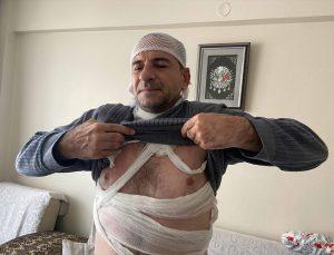 Edirne'de tartıştığı komşusunun üzerine kaynar su döken kişi gözaltına alındı